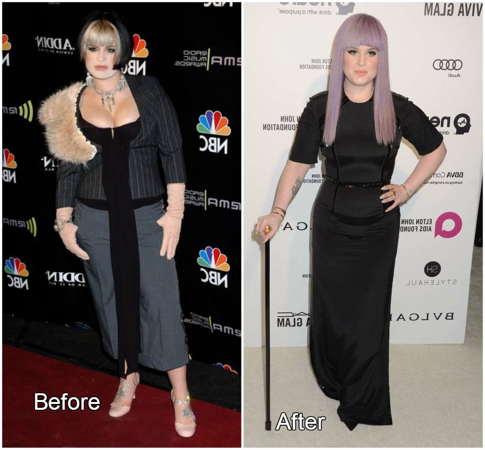 Kelly Osbourne before and after weight loss