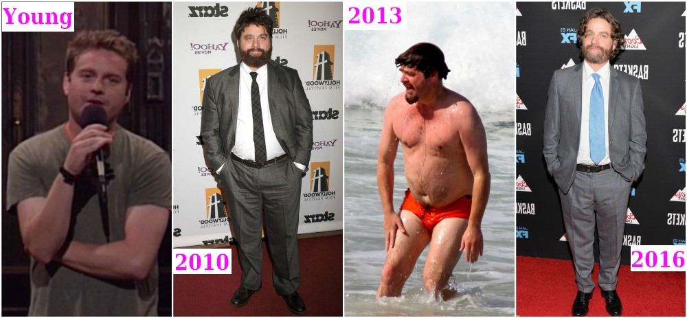 Zach Galifianakis before and after weight loss