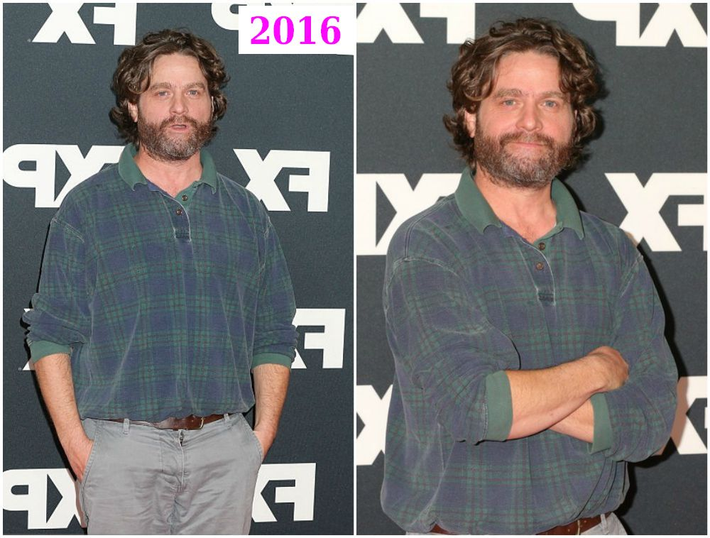 Zach Galifianakis weight loss in 2016