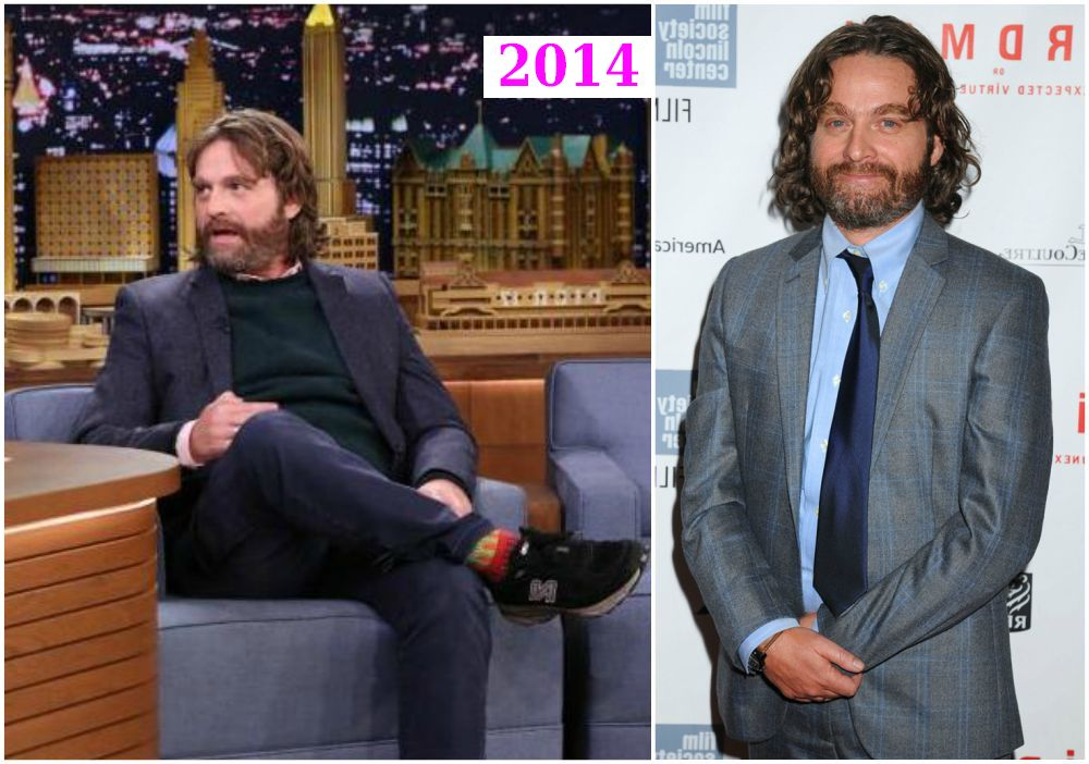 Zach Galifianakis weight loss in 2014