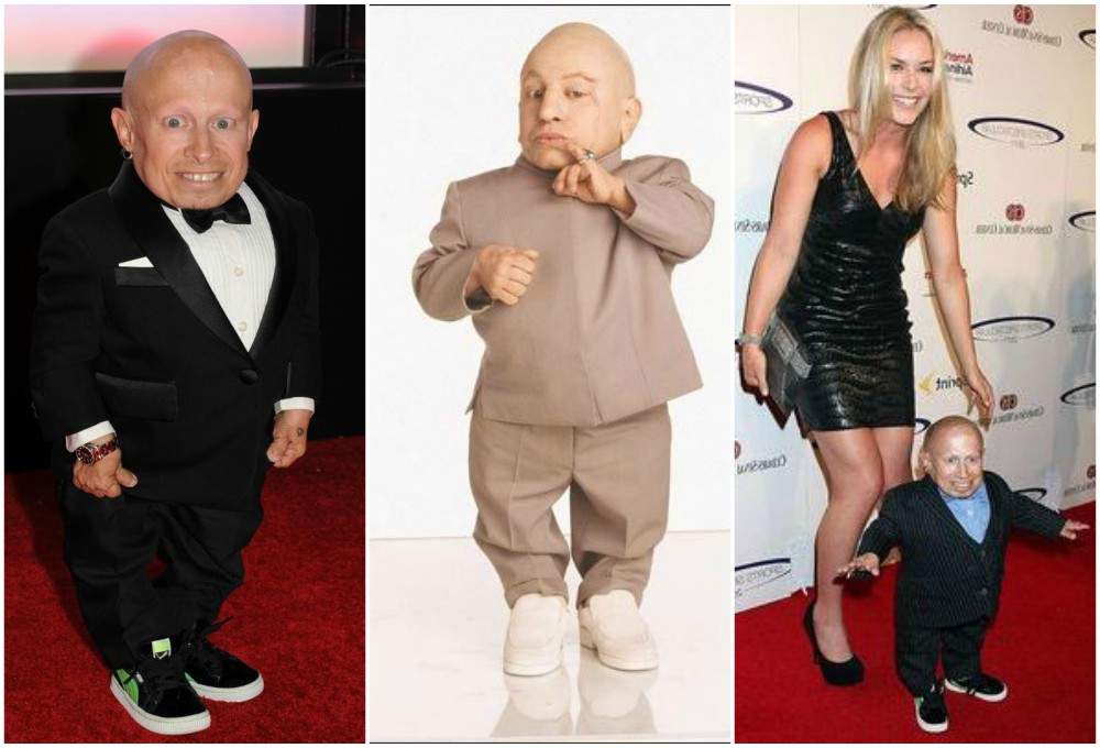 Verne Troyer`s height 81 cm or 2' 8in